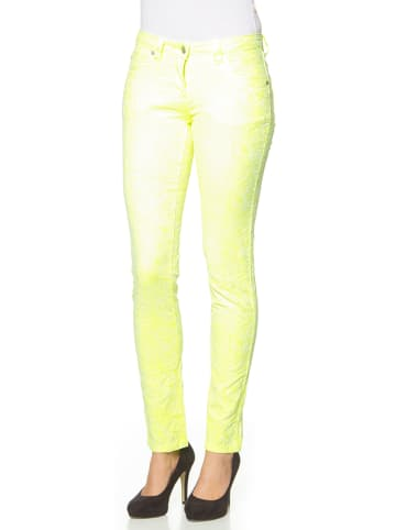 "Million X Broek ""Jacquard"" neongeel"